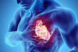 Covid-19 patients have higher risk of dying after cardiac arrest