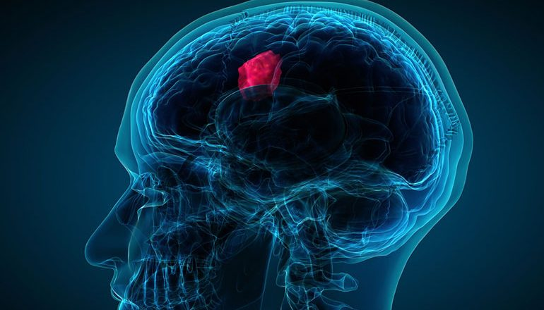 Researchers shed light on routinely imaging brain tumour